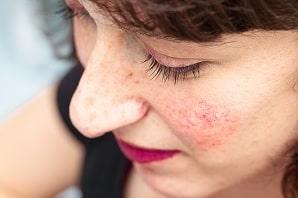 רוזציאה, אדמומיות בפנים וטפיל הדמודקס: איך נפטרים מהעור האדום?