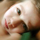 הכל על מחלת הפה והטלפיים אצל ילדים