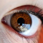 עיניים: תפרי התאמה בניתוחי פזילה