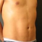 ניתוח פלסטי לגברים: עיצוב קוביות בבטן