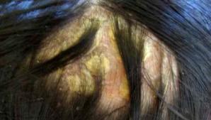 פסוריאזיס בעור הקרקפת: טיפול אינטגרטיבי