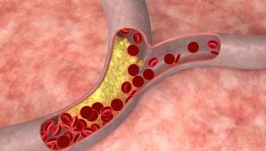 טרשת עורקים - תסמינים, טיפול ומניעה