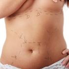פתרונות אסתטיים לבטן רופסת לאחר לידה