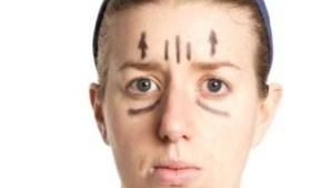 מתיחת פנים: הזרקת שומן לתוצאה טבעית