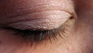 עיניים פקוחות לרווחה: על ניתוחי עפעפיים