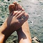יבלת ויראלית ברגל: פדיקור לא תמיד עוזר