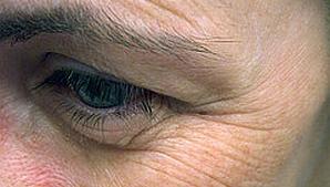 ניתוח עפעפיים לתיקון שקיות מתחת לעיניים