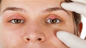 הקשר בין בלפריטיס לעין יבשה