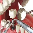 השתלת שיניים ממוחשבת: טיפול מהיר ללא תפרים ומינימום תופעות לוואי