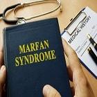 תסמונת מרפן: גורמים, תסמינים ודרכי טיפול