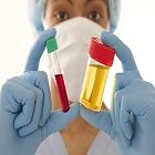 המטוריה: גורמים ודרכי טיפול בדם בשתן