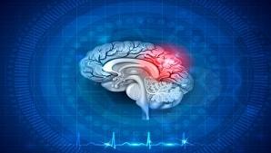 גרייה מוחית לאחר אירוע מוחי – תיאורי מקרה