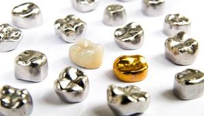 כתרי זירקוניה ו- E-max לשחזור מושלם של השיניים