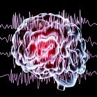 תסמינים נוירופסיכיאטריים של אפילפסיה