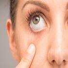 IPL: טיפול חדשני ליובש בעיניים