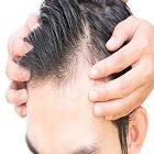 השתלת זקיקי שיער: מה בכלל זה אומר?