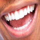 ציפוי שיניים – למנייט