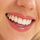 ציפויי חרסינה לשיניים – כל מה שצריך לדעת