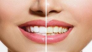 ציפוי שיניים: מה עדיף למינייט או  קומפוזיט